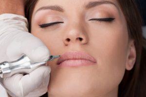 Lippenkontur bei Frauen